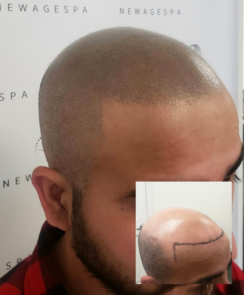 Bald head tattoo
