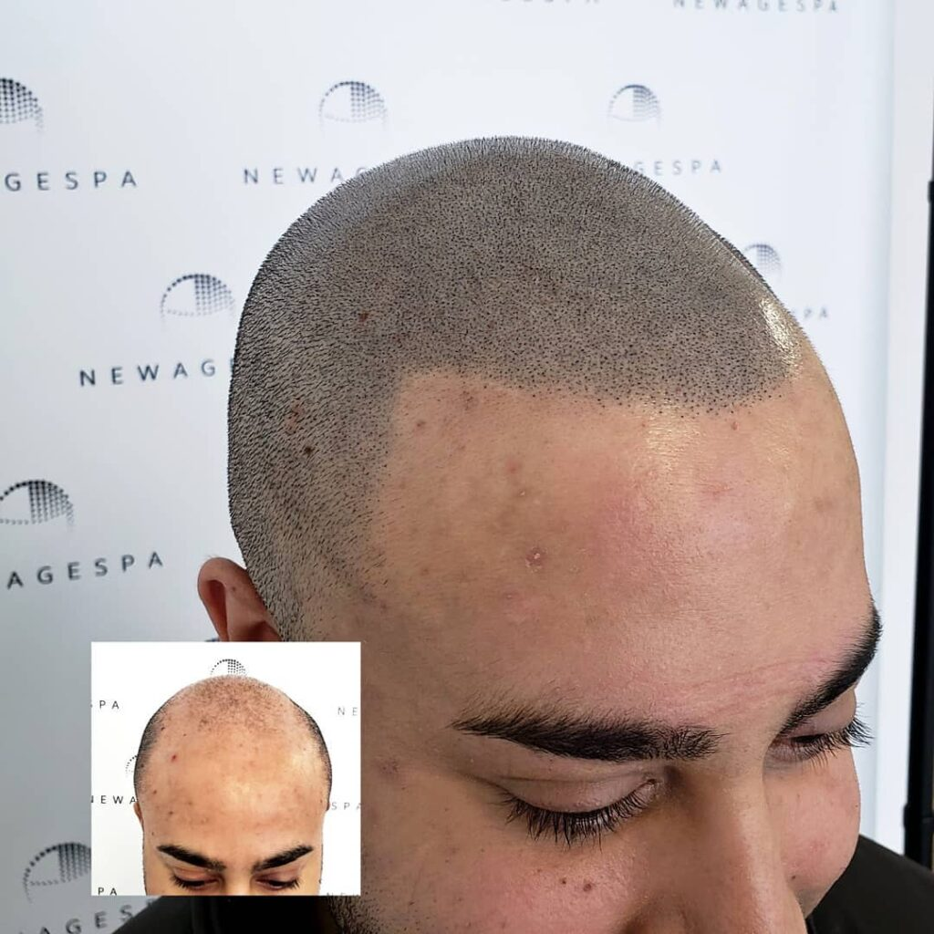 Realistic hair micropigmentation capillaire in Montreal