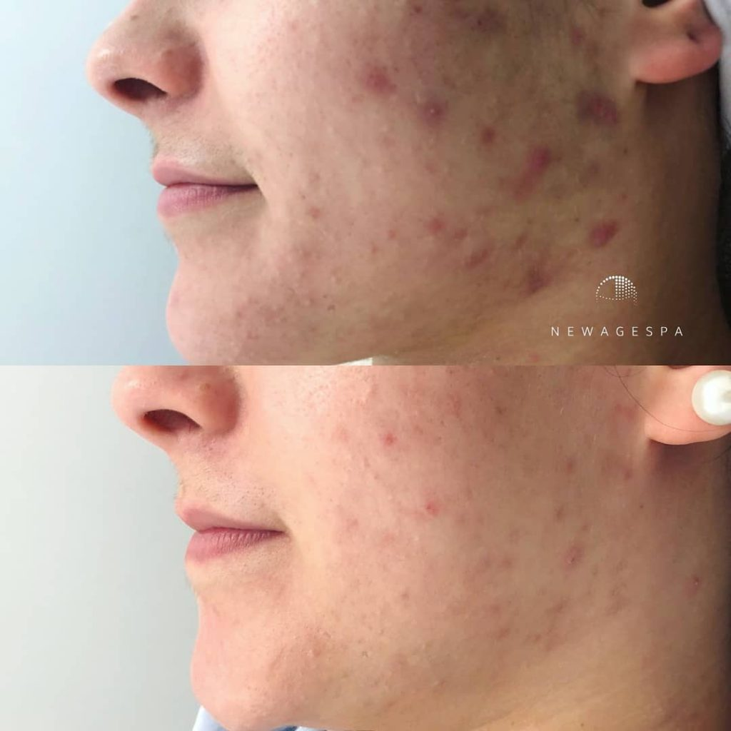 Microneedling for red pimple scars on the face