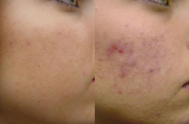 Microneedling in montreal and laval before and after