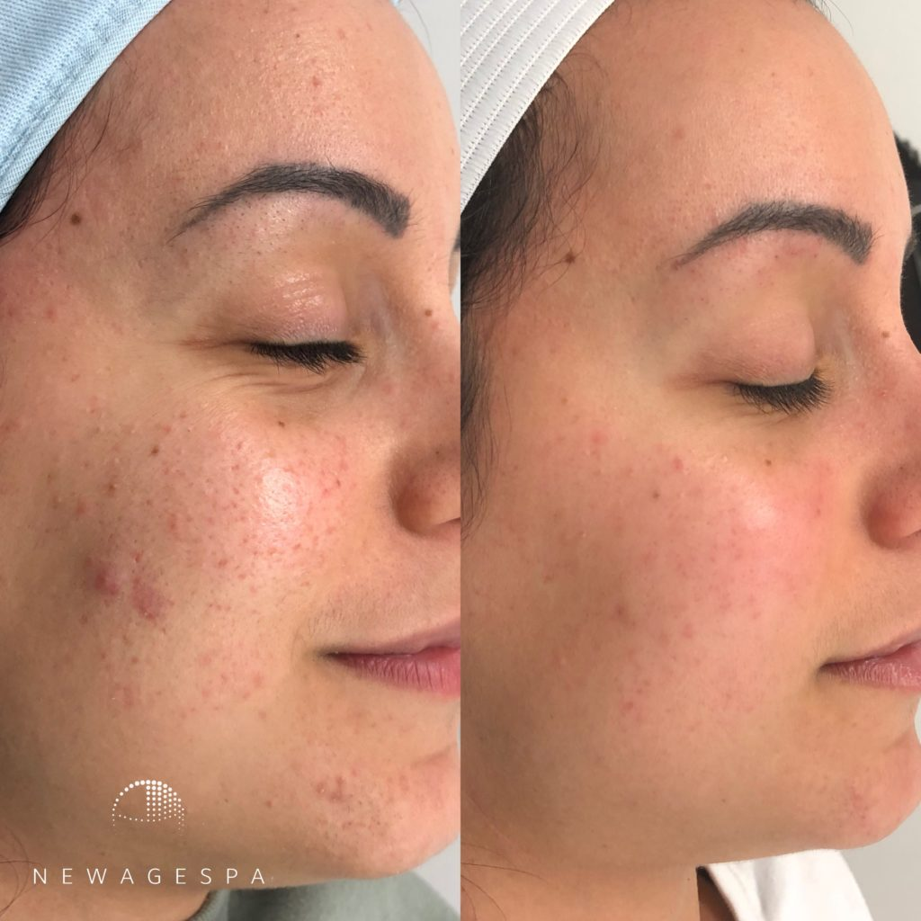 Microneedling best results in montreal