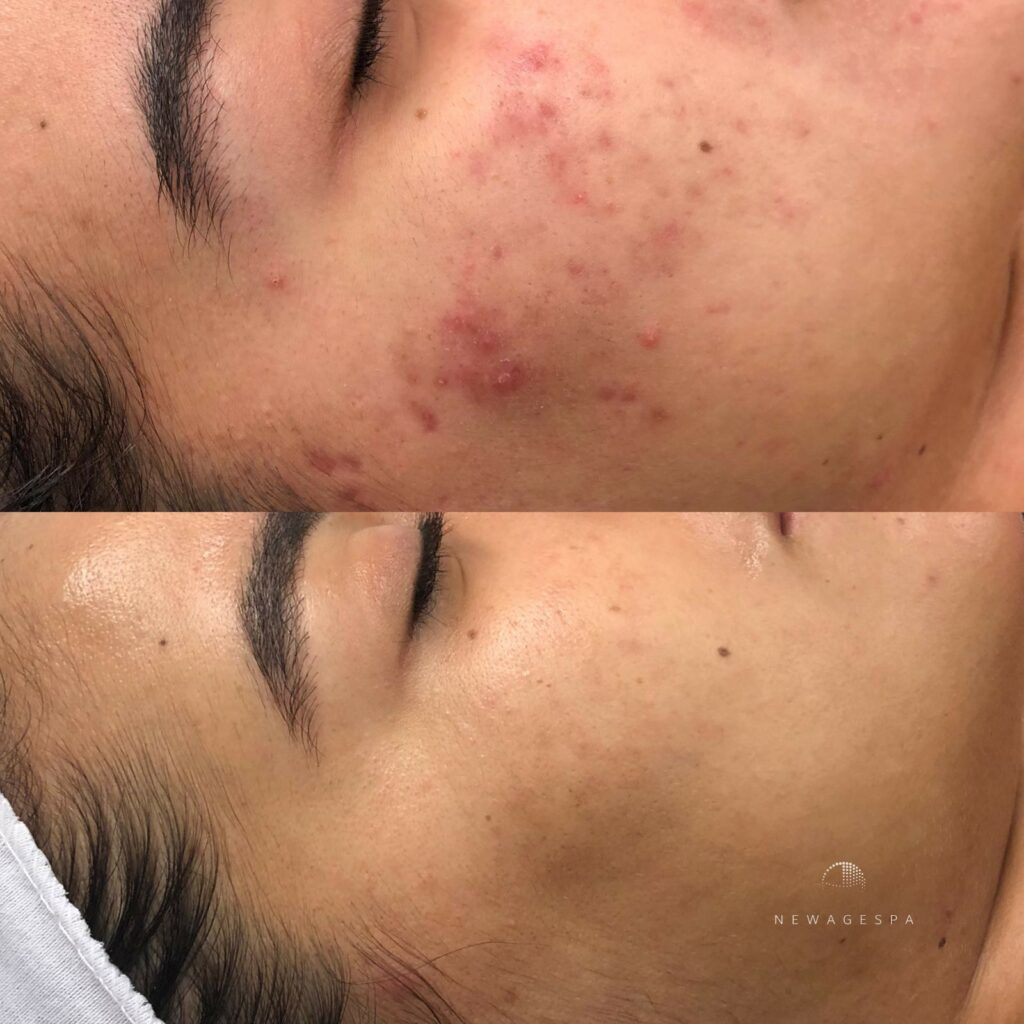microneedling acne scars removal in montreal