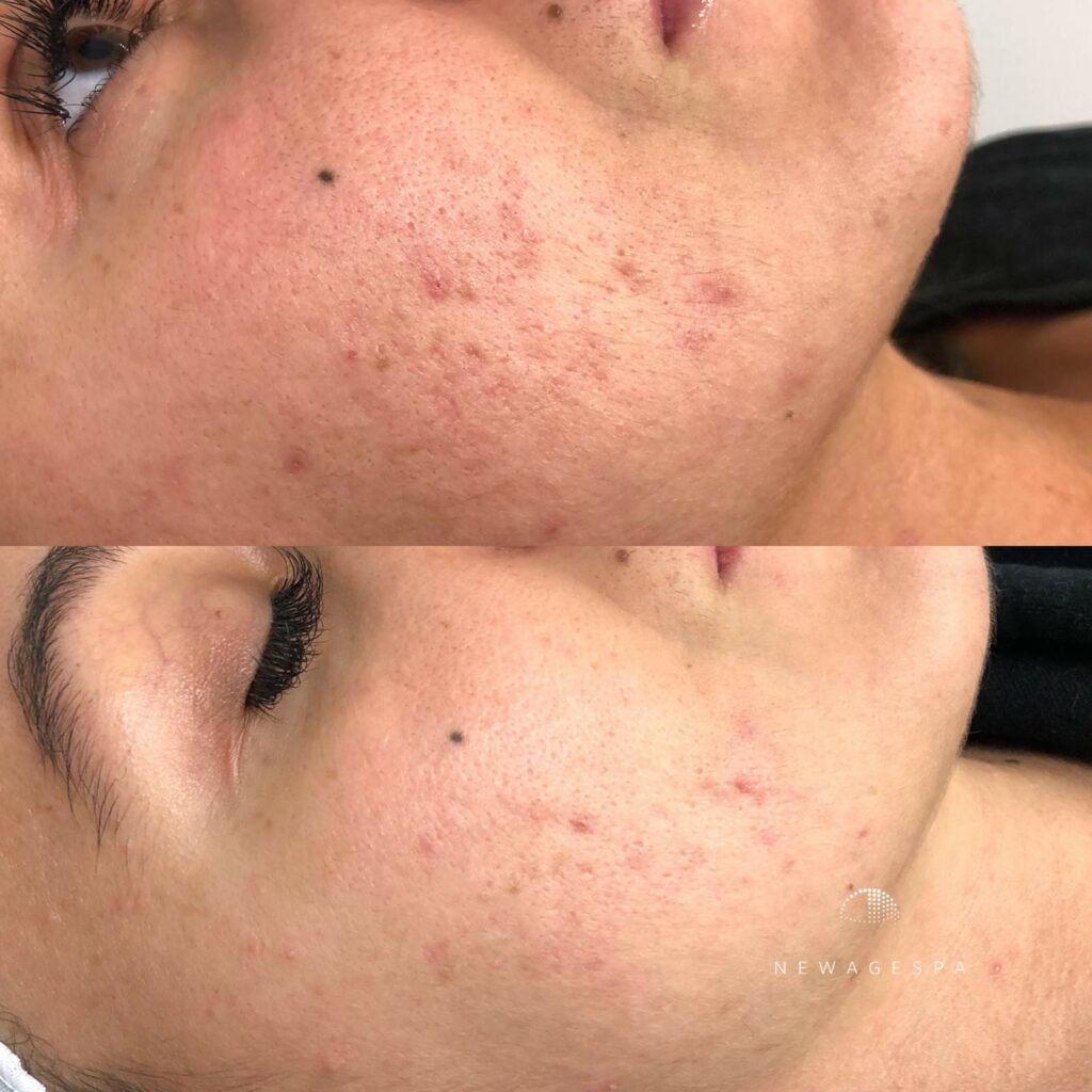 Microneedling on the cheeks