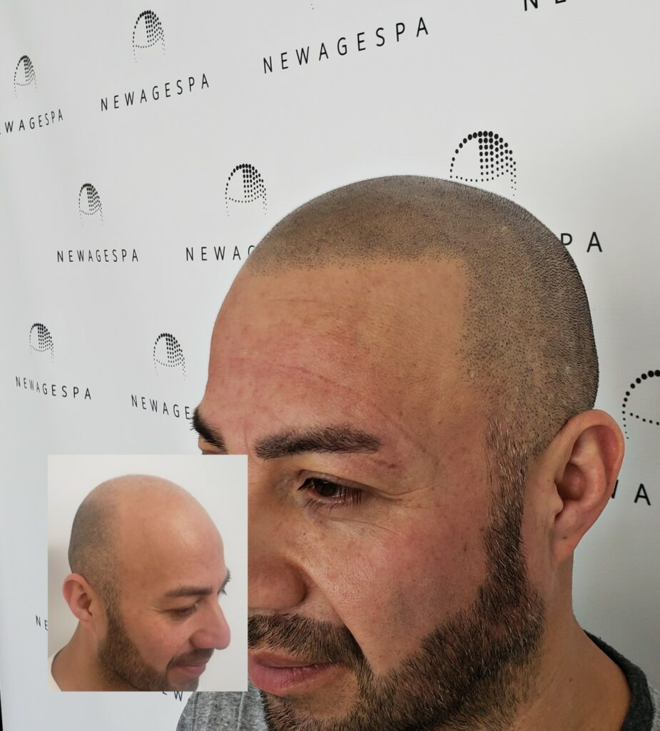 Hair micro scalp pigmentation laval