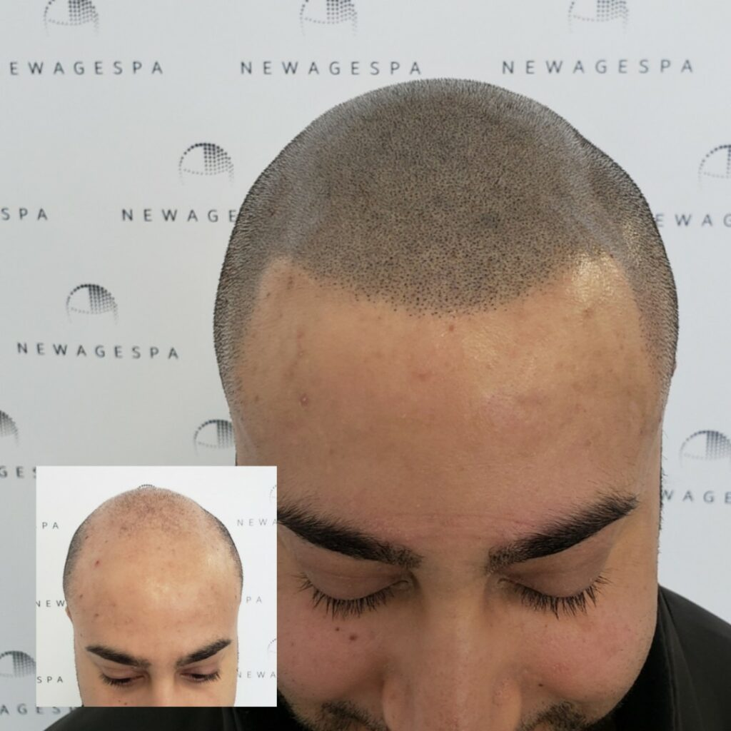 Scalp Micropigmentaiton Montreal