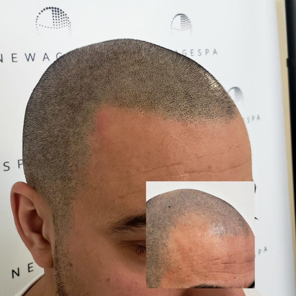 Get your hairline back with scalp micropigmentation