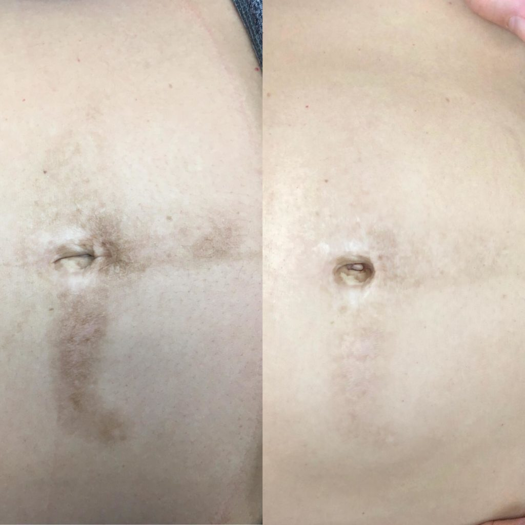 Microneedling for streatch marsk and scars on stomach