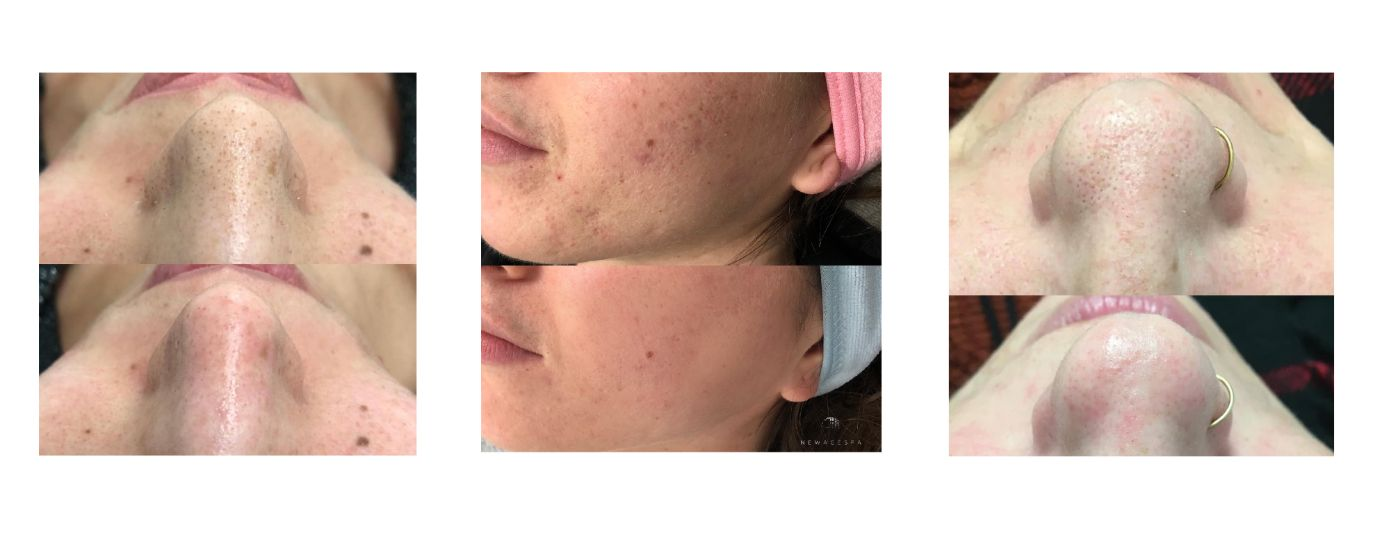 hydrafacial results picture