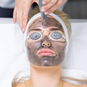 carbon peel laser facial in Montreal and laval peeling facials for skin